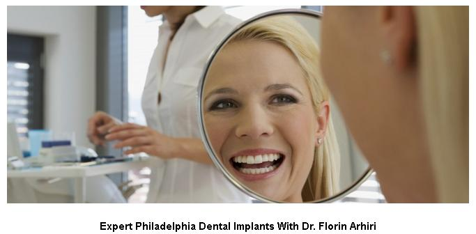 Philadelphia dental implants