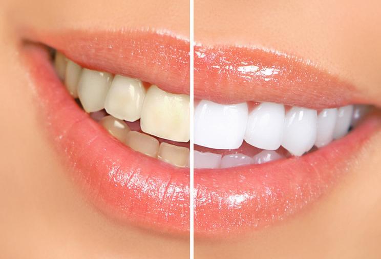 Orange County dentist