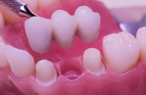 dental implants Austin