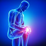 Knee Surgeon - Operation Diagnosis