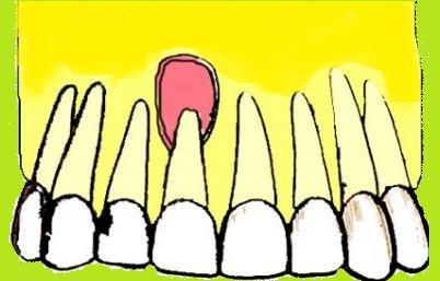 Dental Cyst Forms In Children