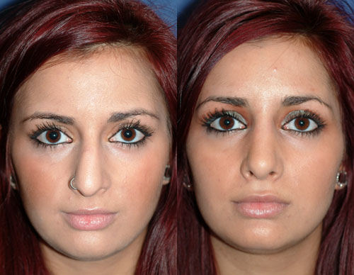 How To Exclude Risks Associated With Facial Corrective Surgery