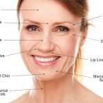 Slimming Down Your Face Using Botox