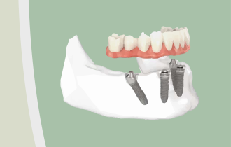 The Benefits Of All On Four Dental Implants