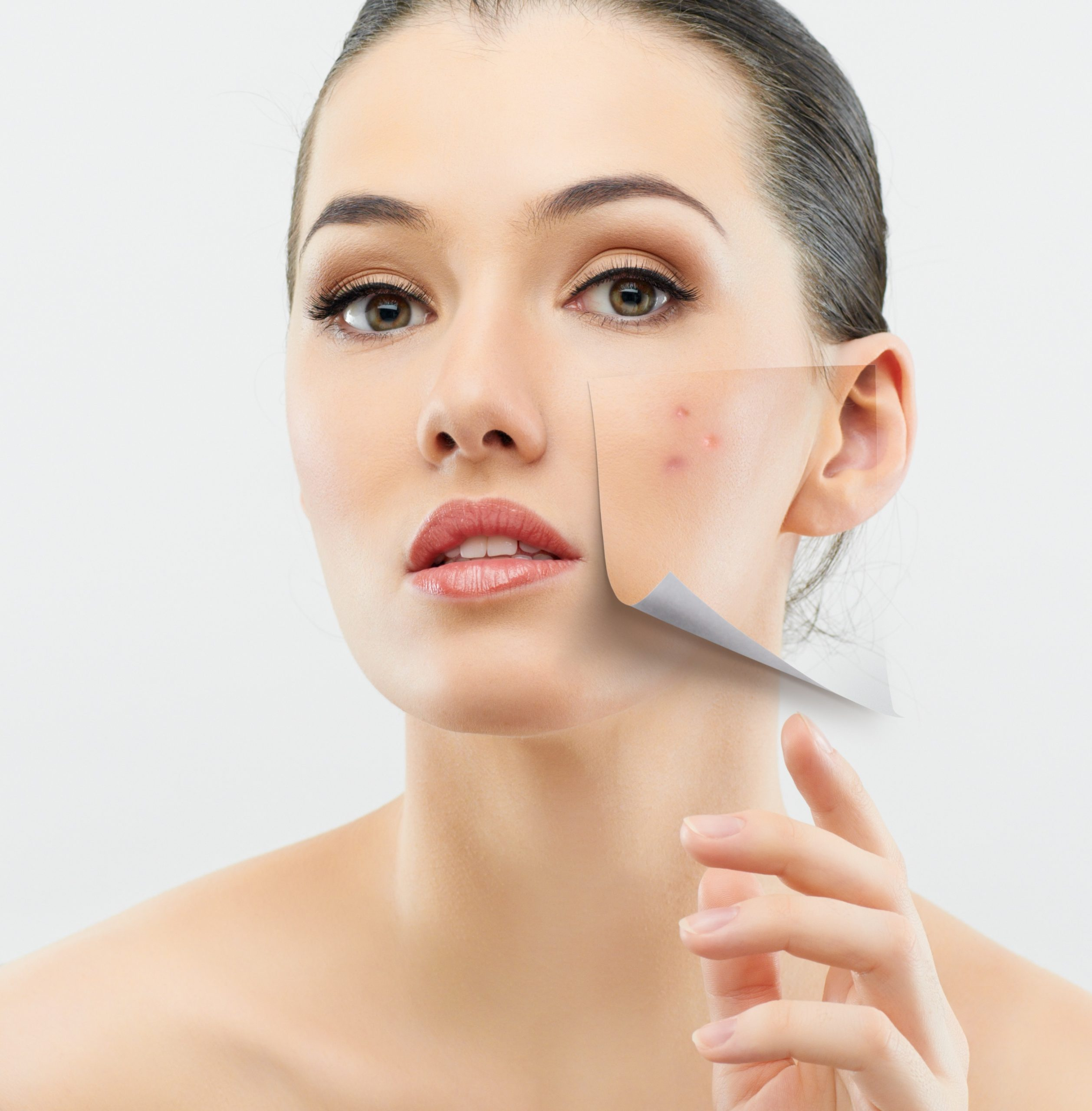 Top 10 Advanced Treatment For Acne