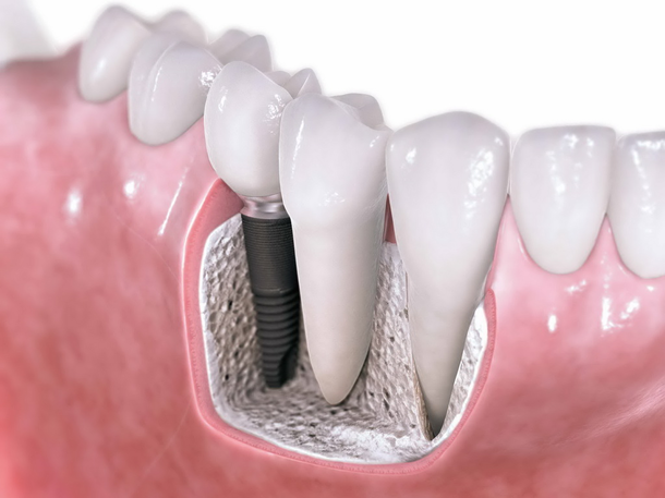 Significance Of Dental Implants