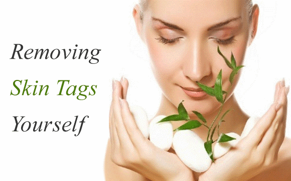 Skin Tags And Methods To Treat Them Effectively