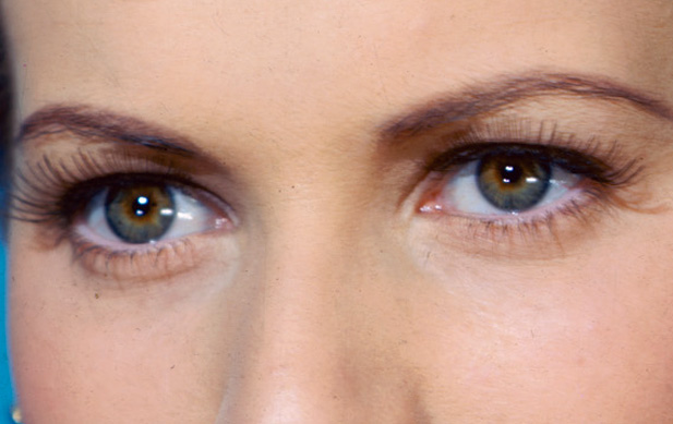 Common Health Problems Associated With The Eyes That You Might Not Be Aware Of