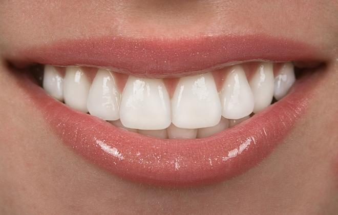 Understanding Porcelain Dental Veneers