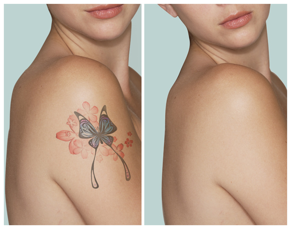 A Guide On Tattoo Removal