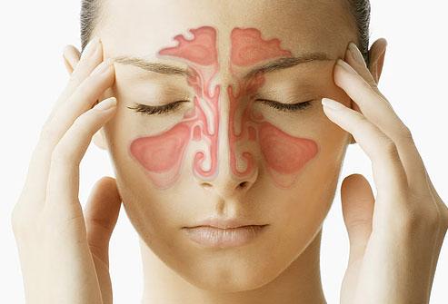 Common Sinus Infection Symptoms