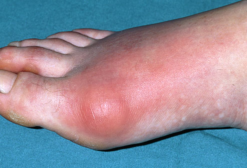 How To Treat and Manage A Gout Attack