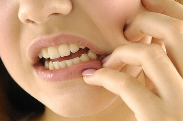 Natural Home Remedies For A Toothache