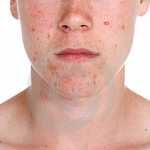 Skin Care: The Best Ways To Conceal Your Acne Problem