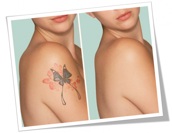Essential Parameters and Considerations For Tattoo Removal In New York