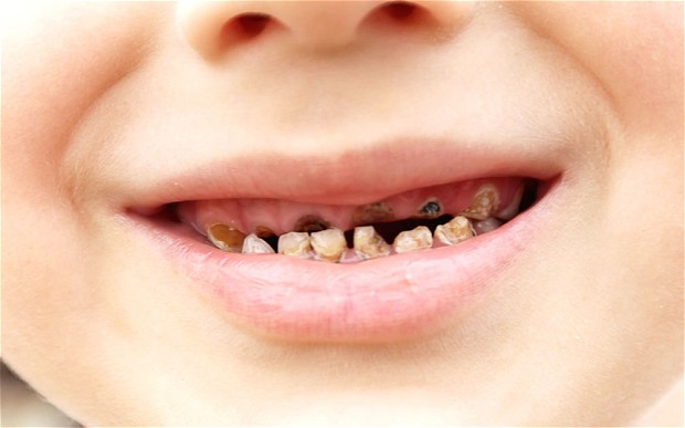 How To Prevent Early Childhood Tooth Decay