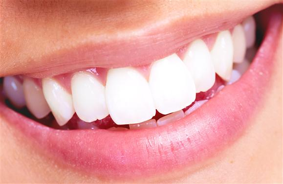 What To Do Before and After Your Teeth Whitened?