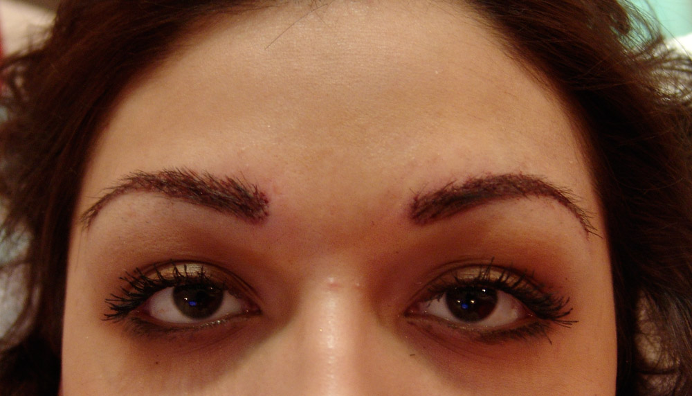 Restore Your Confidence With Eye-brow Transplation