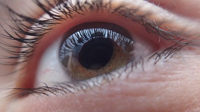 Aging Eyes: Age-Related Cataracts