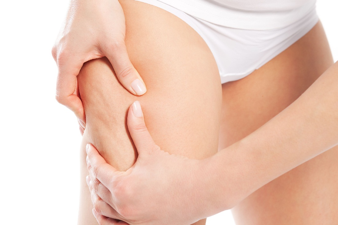 Types Of Cellulite and Their Treatment