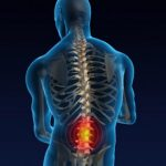 The Positive Benefits Of Non-Invasive Treatment To Relieve Lower Back Pain