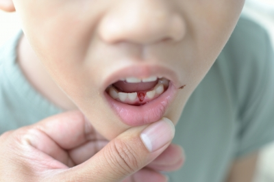 When Do Children's Teeth Fall Out