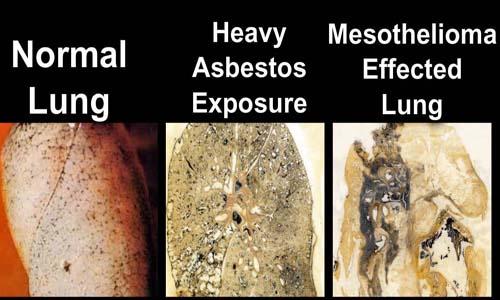 When Is Asbestos Dangerous For Health