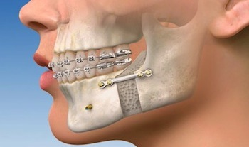 What Is Orthognathic Surgery?