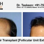 Learn About Important Measures About Hair Transplant