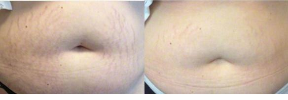 Good Riddance To Stretch Marks!