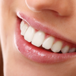 Learn How To Get Great Dental Implants At An Affordable Price