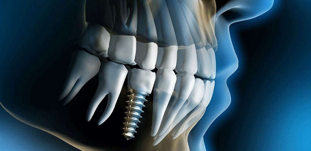 Why Should You Go For Dental Implants?