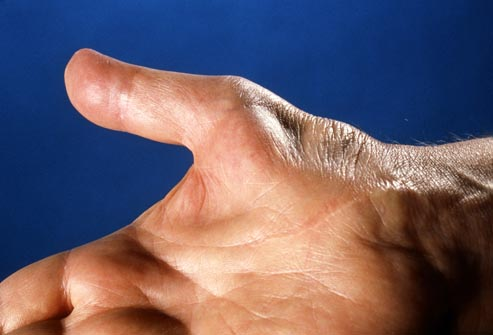 Everything You Need To Know About Carpal Tunnel Syndrome