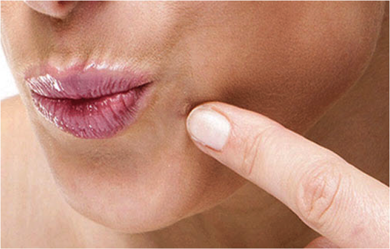 10 Natural Solutions To Permanently Get Rid Of Embarrassing Warts
