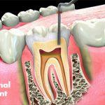 Endodontics-root-canal-treatment
