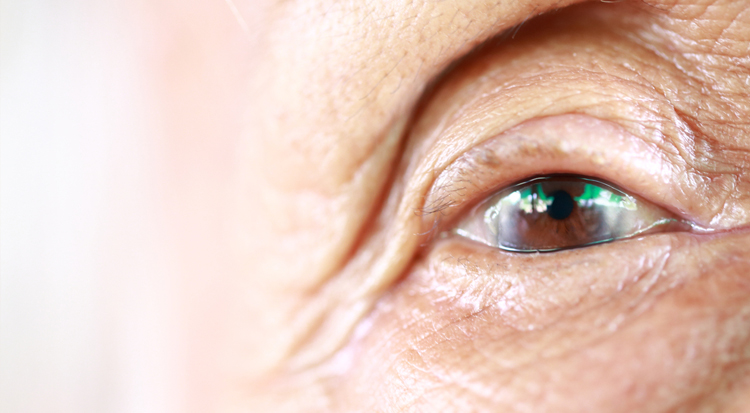 Getting Your Eyesight Back After Cataracts
