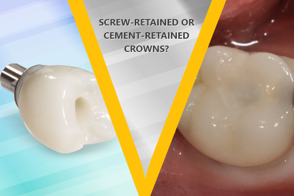 Screw-Retained or Cement-Retained Crowns – Which One Is Better?