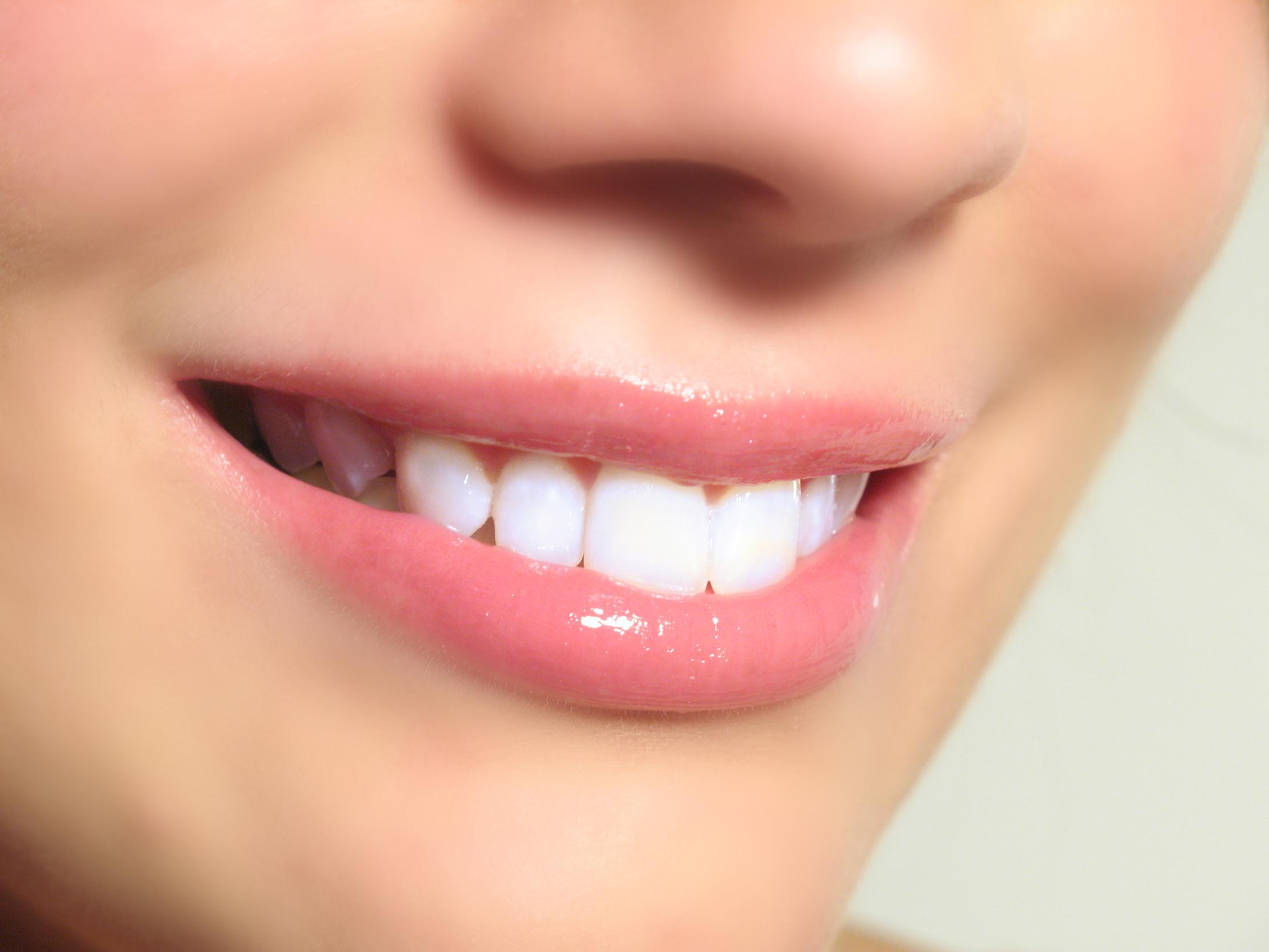 Teeth Whitening Guide