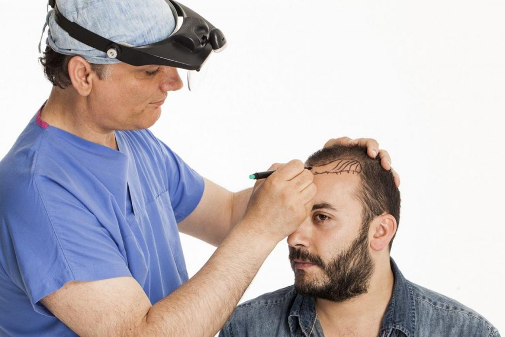 Techniques Used in Hair Transplantation