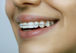 3 Main Alternatives To Metal Braces For Adults