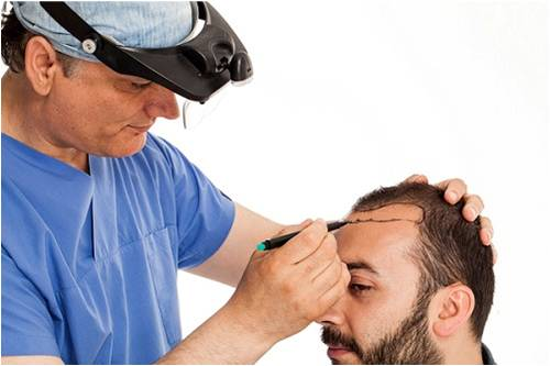 Why Is FUT A More Selective Choice Among Expert Hair Transplant Surgeons