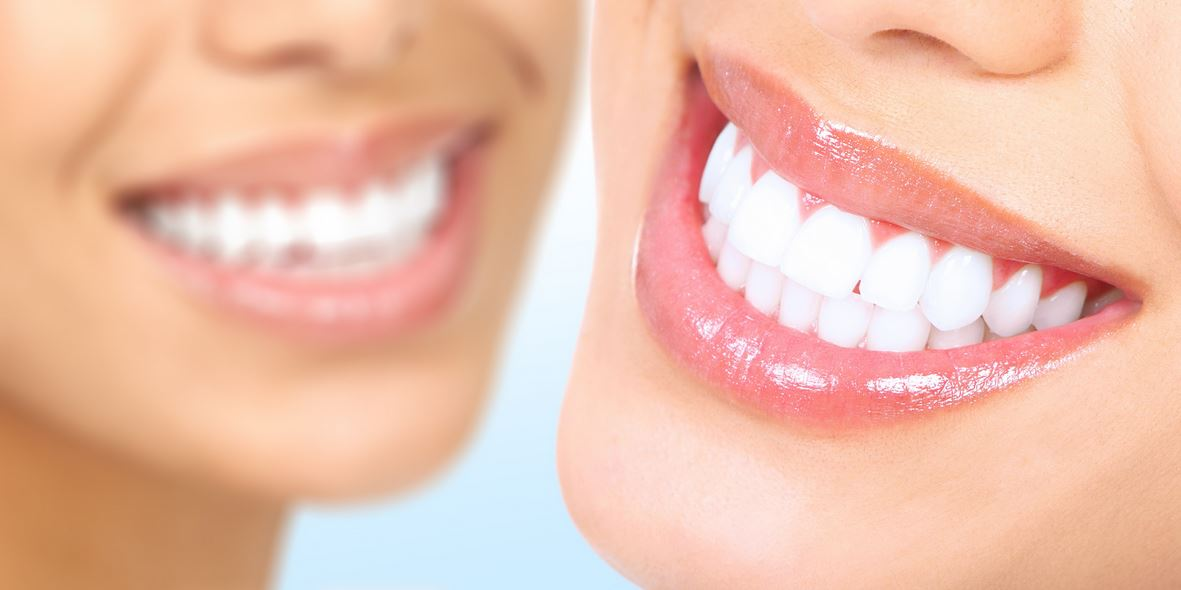 Smile Makeovers: Why You Should Be Considering Cosmetic Dentistry