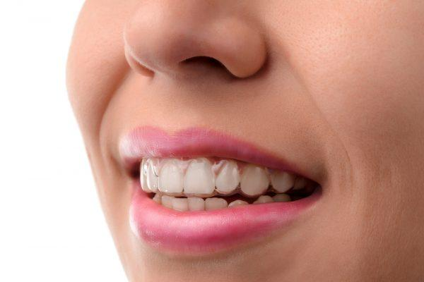 4 Advantages Of Teeth Straightening