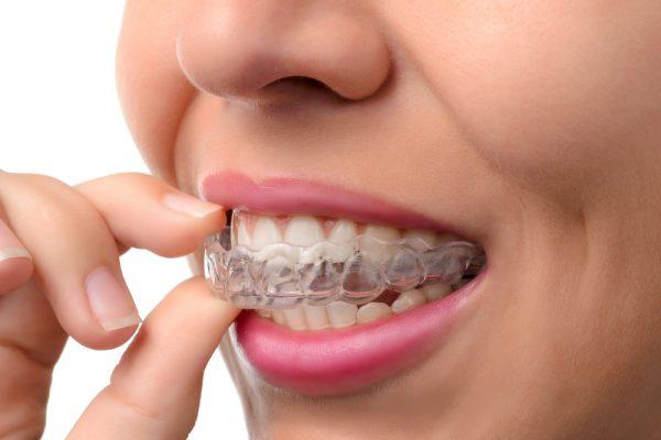 4 Advantages Of Teeth Straightening