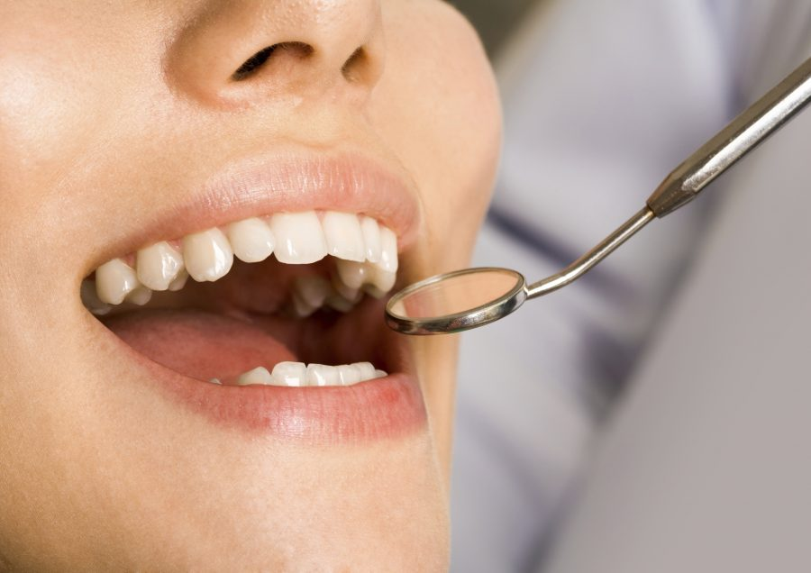 Why You Need To Get Your Teeth Checked Regularly
