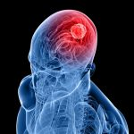 5 Warning Signs Of A Brain Tumor You Need To Know