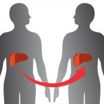 A Definite Guide Of Helping Your Loved Ones Recovering From Liver Transplant