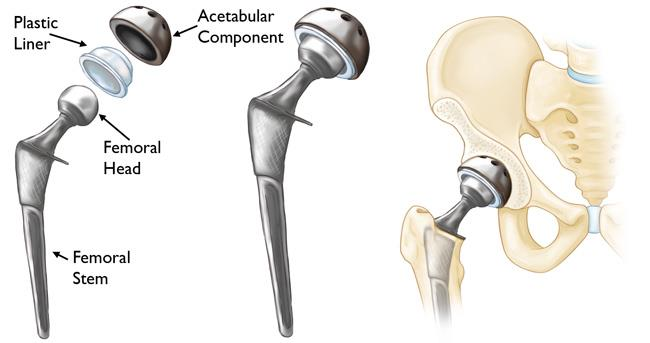 Tips You Need To Follow For A Successful Hip Replacement Surgery